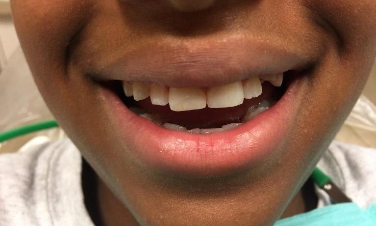 Cosmetic-Fillings-After-Image