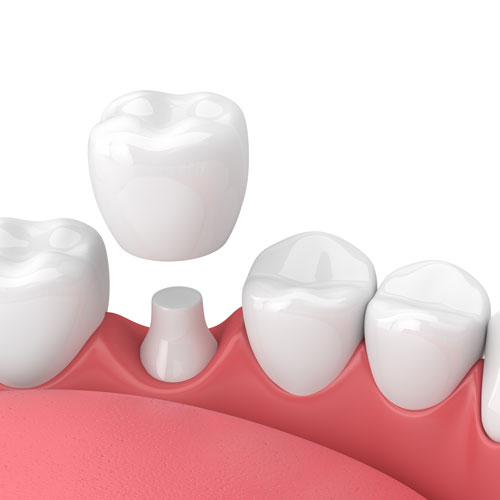 Callister Dental | Crowns